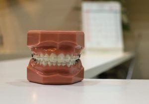 5 orthodontic myths that need to die