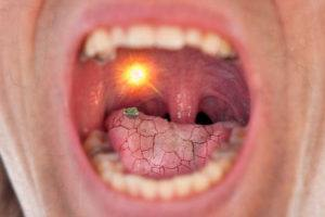 why does my mouth feel dry with braces?