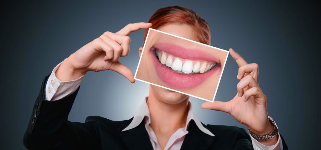 Invisalign First Step Smile