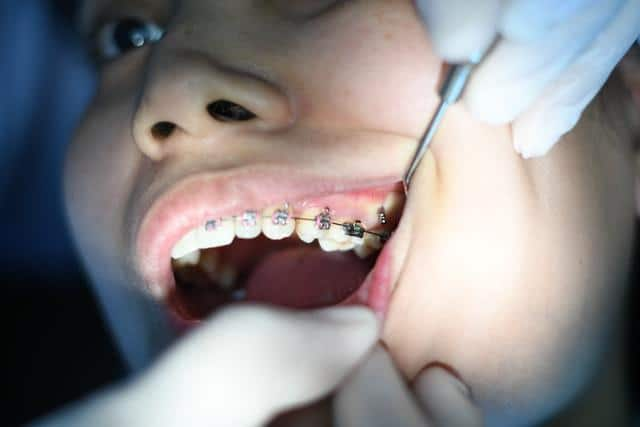 reasons to see an orthodontist